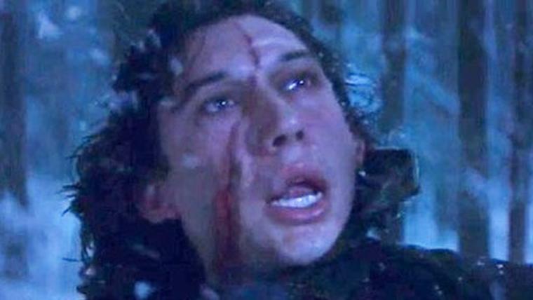 Star Wars: Os Últimos Jedi | Rian Johnson mudou a cicatriz do Kylo Ren por que