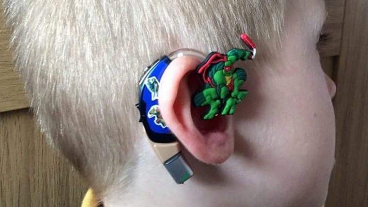 Super-Mãe personaliza aparelho auditivo do filho com heróis